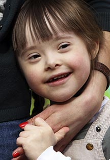 A Down syndrome child brings love and joy.