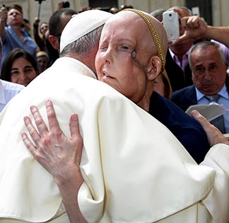 Pope Francis embraces Cheryl Tobin, who has stage four cancer, during his general audience at the Vatican may 11. Tobin is praying for a miracle.